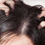 Phương pháp trị gàu và ngứa da đầu ngăn rụng tóc hiệu quả tại nhà